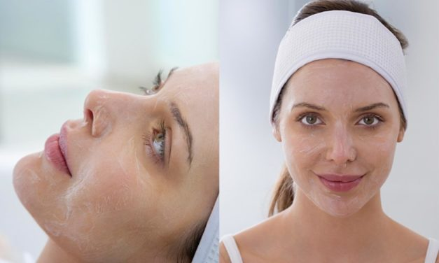 Chemical peeling: an acid for each type of skin