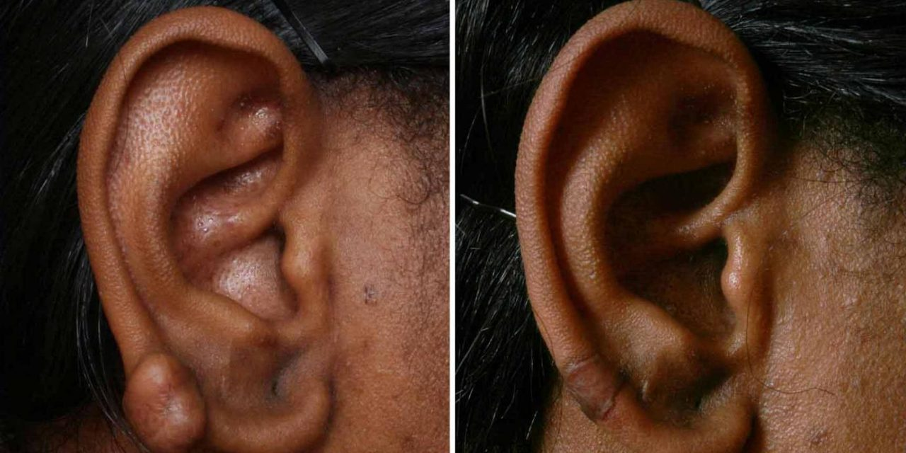 Want to know about the advanced treatment of ear keloid removal